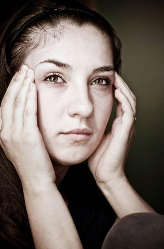 headache migraine vertigo concussions